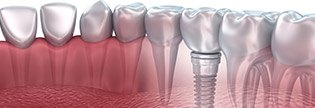 Implant Dentist <span itemprop=