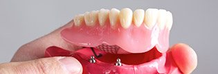Implant Dentist Lake in the Hills, Implant Dentist Lake in the Hills IL, Dental Implants Lake in the Hills, Dental Implants Lake in the Hills IL, Brand New Smile Implants
